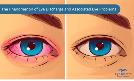 Eye Discharge and Associated Eye Problems