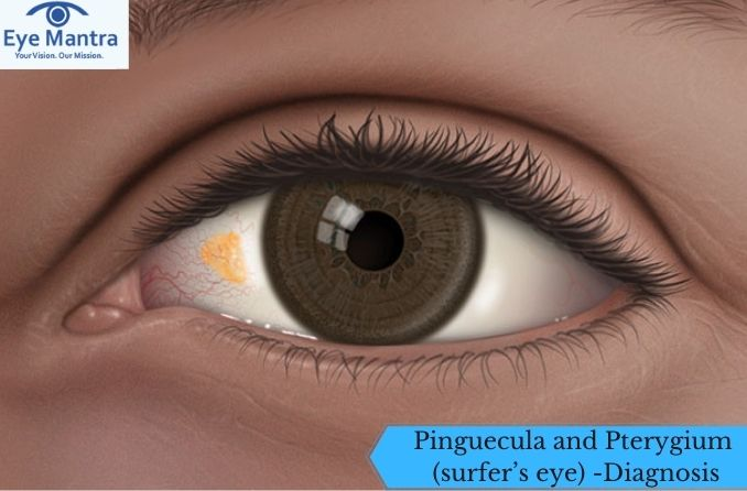 Pinguecula and Pterygium (surfer's eye) -Diagnosis and Treatment