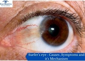 Surfer's eye : Causes ,Symptoms and it's Mechanism