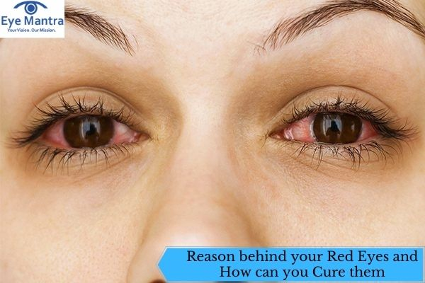 Reason behind your Red Eyes and How can you Cure them